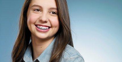 Clareador dental agora só com prescrição de dentistas