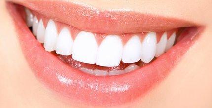 Conheça os tipos de implante dentários!
